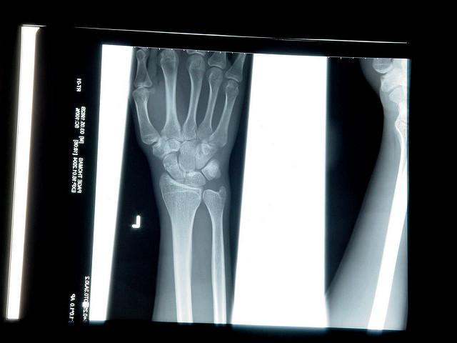 """alt=""""X-Ray"""""""